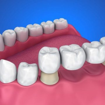 Philip Friel Advanced Dentistry - treatment