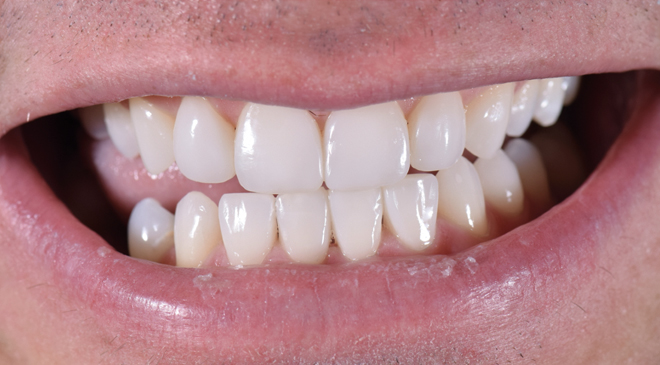 Philip Friel Advanced Dentistry - After