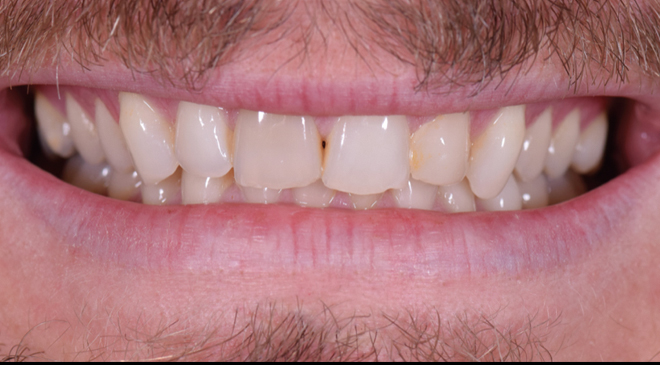 Philip Friel Advanced Dentistry - Before